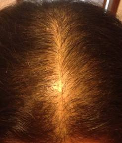 Our Hair Loss Diet Completely Reverses Hair Thinning And Balding