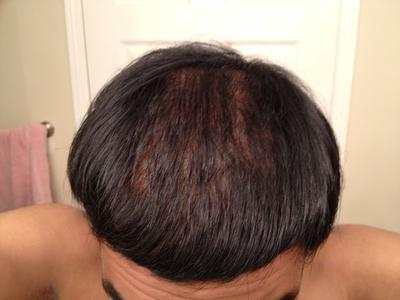 Brian's three month hair regrowth update