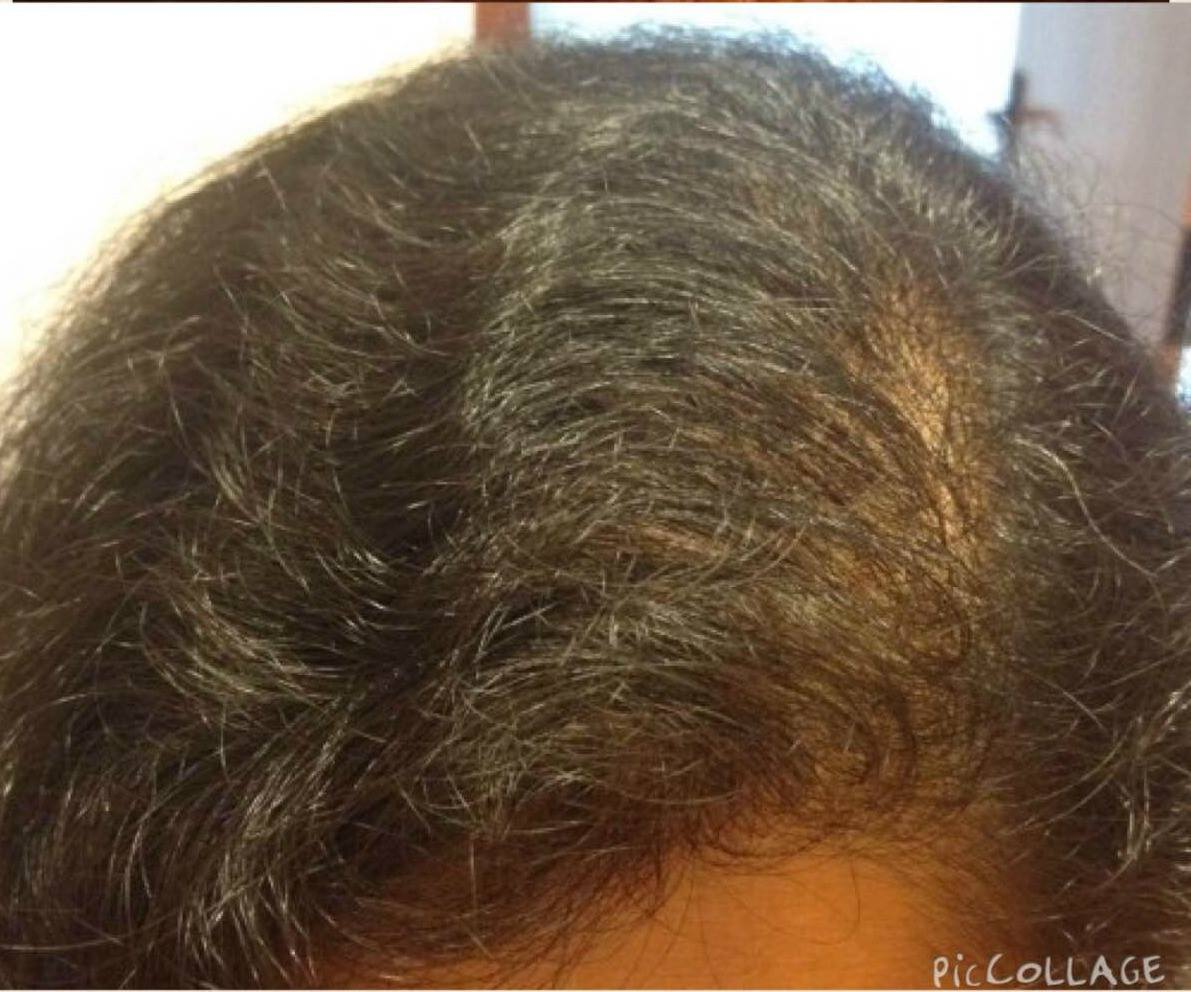 Natural Remedy For Hair Loss: Step by Step, Learn How to ...