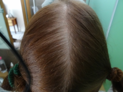 Nat's 18 month hair regrowth update and after photo