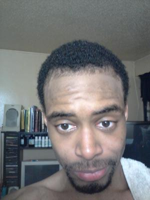 Frontal View of Hair Regrowth