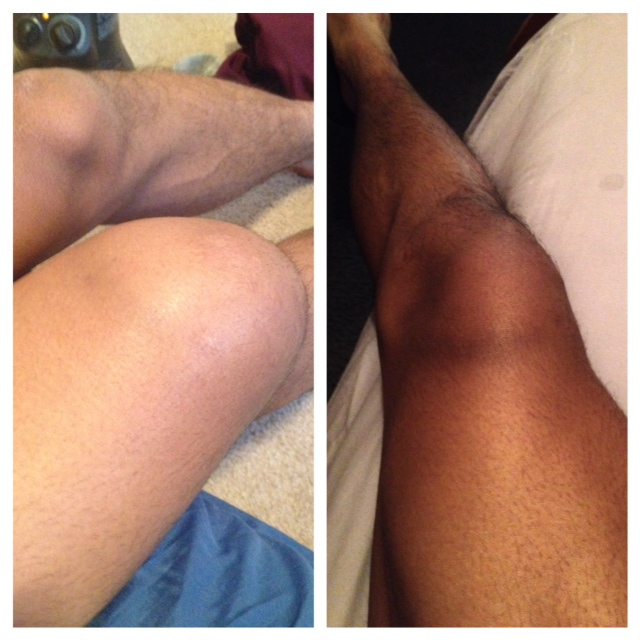 Before and after picture showing swelling from football injury