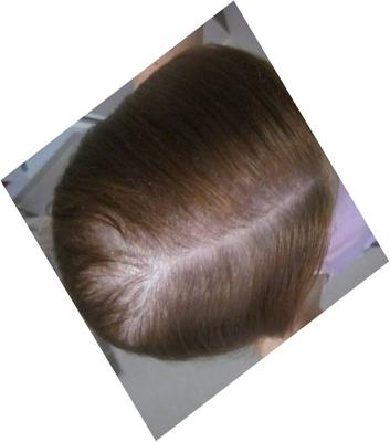 After Hair Regrowth (December 2012)