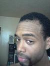 Left Side View of Hair Regrowth