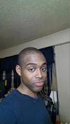 Cardaro's Hair Regrowth Update 7/1/2013
