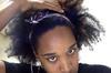 my hair line