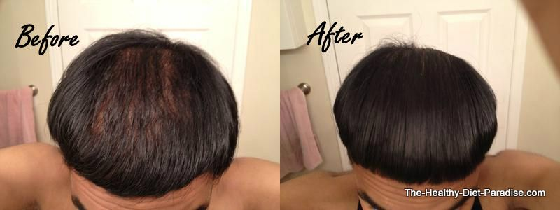Brian's before and after regrowth story